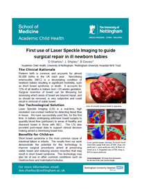First use of Laser Speckle Imaging to guide surgical repair in ill newborn babies